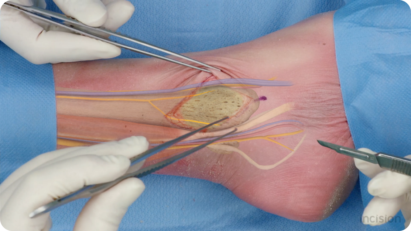 Anatomy of the leg in 3D computer generated imagery for surgery